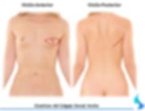Cicatrices tras dorsal ancho.