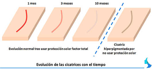 Evolucion cicatrices estetica, cirugia mamaria, aumento de mama, reduccion de mama