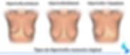 hipertrofia mamaria