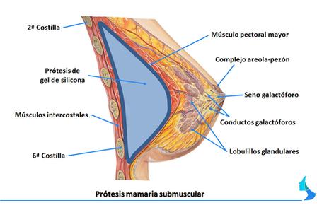 aumento de mama submuscular subpectoral