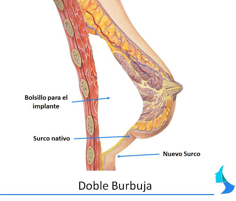 Doble burbuja prótesis de mama