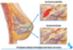 tipos de cancer de mama