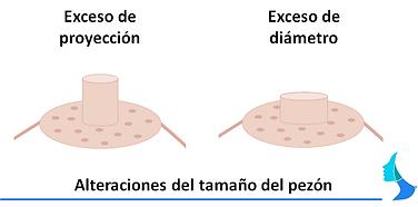 Alteracion tamaño pezon cirugía