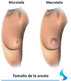 Tamaño areola macrotelia microtelia