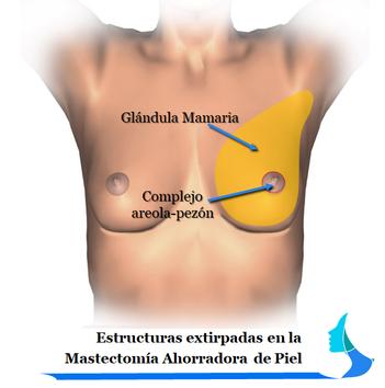 Mastectomía ahorradora de piel