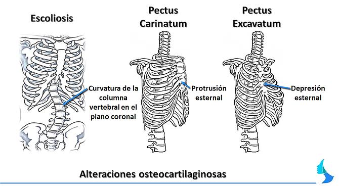 asimetría, pecho, mamas, embarazo, cirugia, aumento , reduccion, mama tuberosa, mamoplastia