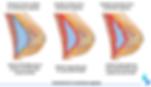 Contractura capsular grados