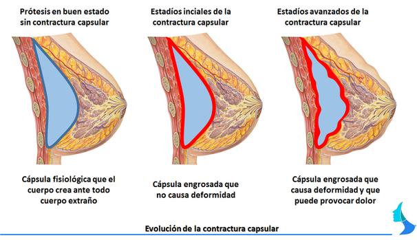 aumento de mama, pecho, contractura capsular, cirugia, mamoplastia