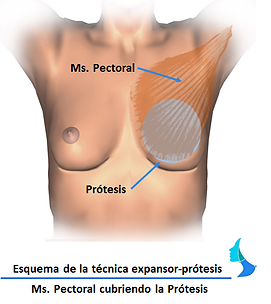 Reconstrucción mamaria expansor