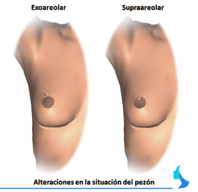 Alteracion situacion pezon cirugia