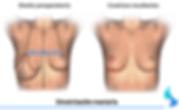 mama, pecho, mamas, embarazo, cirugia, aumento , reduccion, mama tuberosa, mamoplastia