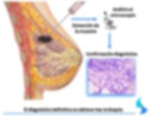 biopsia cancer de mama