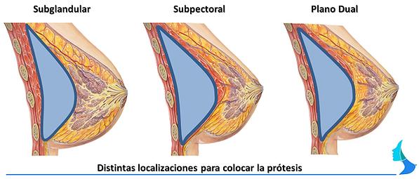 aumento de mama protesis