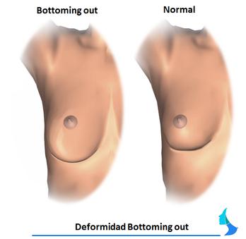 Desplazamiento protesis mama
