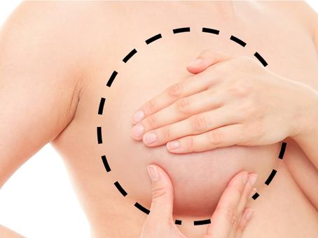 Seguridad oncológica de la mastectomía ahorradora de areola-pezón