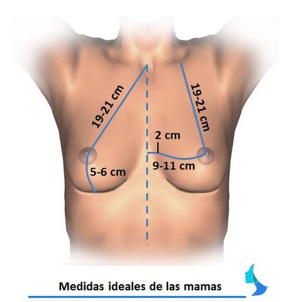 Pecho ideal, seno ideal, proporcionado, mamoplastia, atractivo