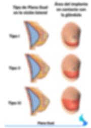 Aumento de mama plano dual dual plane mixto