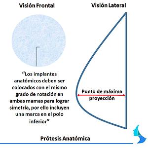 Protesis anatomica de silicona