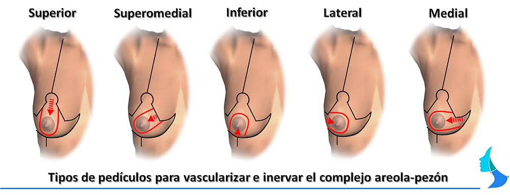 reduccion de mama, mastopexia, cirugia mamaria, pediculo