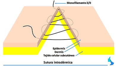 Sutura intradérmica, cirugia mamaria, plastica, estetica