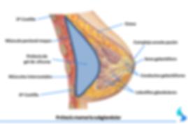aumento de mama subglandular