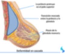 Doble Burbuja, Cirugia mamaria, aumento, reduccion, estetica de mama