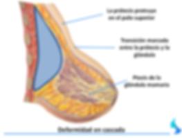 aumento de mama, pecho, mamas, embarazo, cirugia, aumento , reduccion, mamoplastia