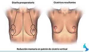 reduccion de mama, mastopexia, cirugia mamaria, Lejour, cicatriz vertical
