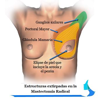 Mastectomía Radical