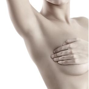 Axillary-Web Syndrome (AWS) y síndrome de Mondor tras cirugía mamaria y axilar