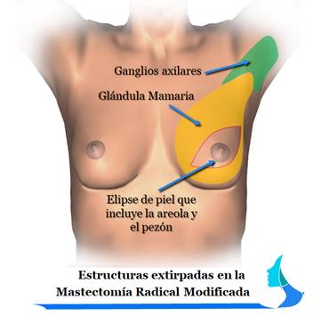 Mastectomía Radical modificada
