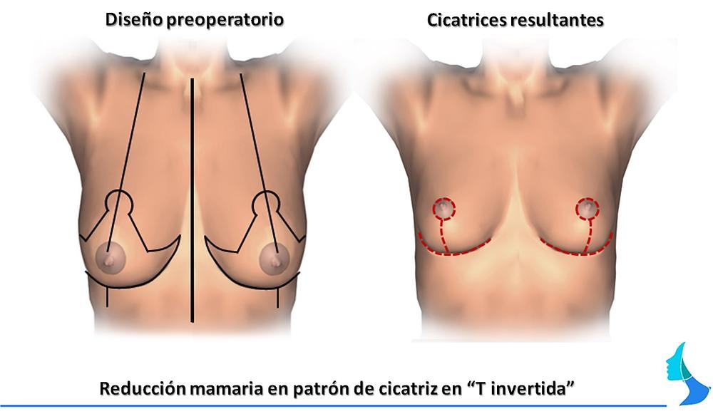 reduccion de mama, mastopexia, cirugia mamaria, WISE, cicatriz en T invertida