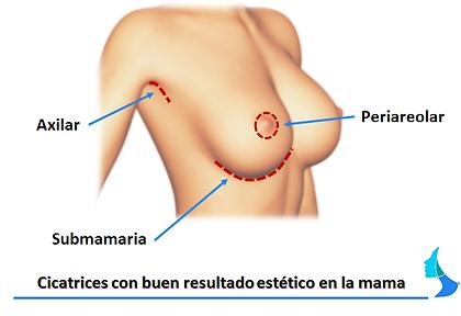 Cicatriz, incision, cirugia estetica, aumeno de mama, mamoplastia
