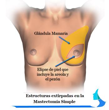 Mastectomía Simple