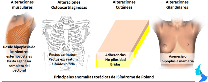 Síndrome de Poland, cirugia mamaria, estetica, aumento reduccion