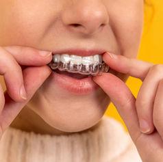 Chica joven poniendose aparato Invisalign en los dientes
