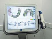 iTero scaner en GM Ortodoncia en Algeciras