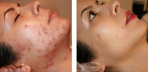 Euphrates Cosmetics Testimonials