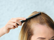 bigstock-Young-Woman-With-Hair-Loss-Pro-