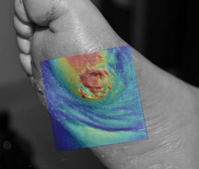 What Role Hyperspectral Imaging in the Wound Care and Hyperbaric Medicine Center?