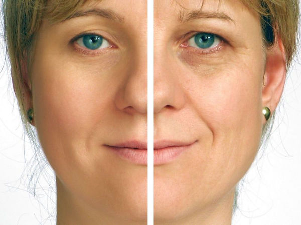 Medical Esthetic treatments for women