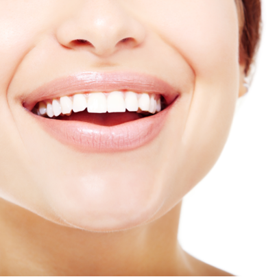 Pearly White Teeth! At Home Professional Teeth Whitening