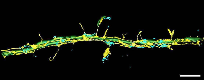 Dendrite+Segmentation