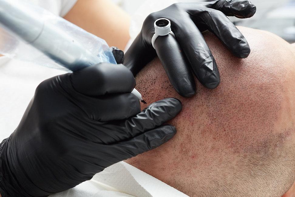 scalp micropigmentation coventry