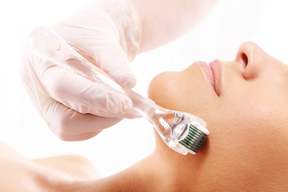 microneedling coventry