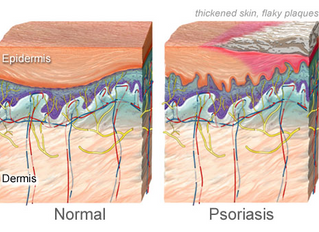 August is Psoriasis & Psoriatic Arthritis Month, Symptoms, Natural Treatments