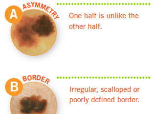 ABC's of Skin Cancer: The Good, The Bad, The Ugly