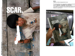 SCAR.