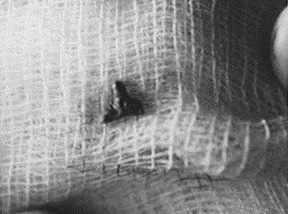 Image from https://alien-ufo-research.com/alien-implants/