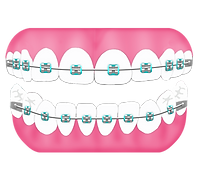 pdc-primary-bite-flat-with-braces-layers